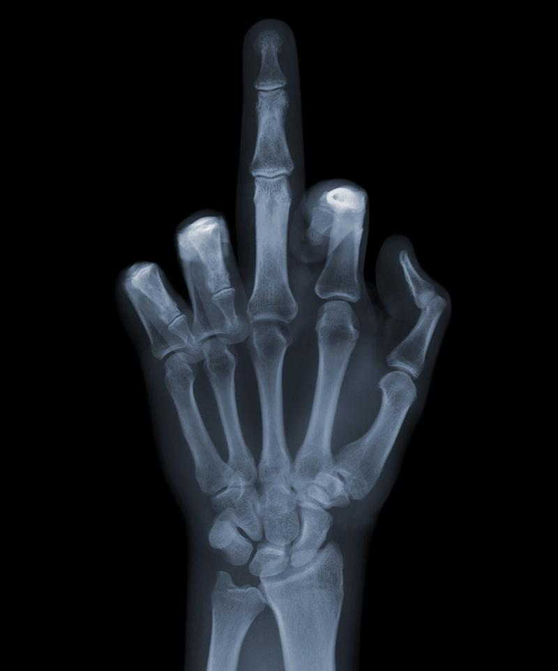 X-Ray photography Nick Veasey middle finger you
