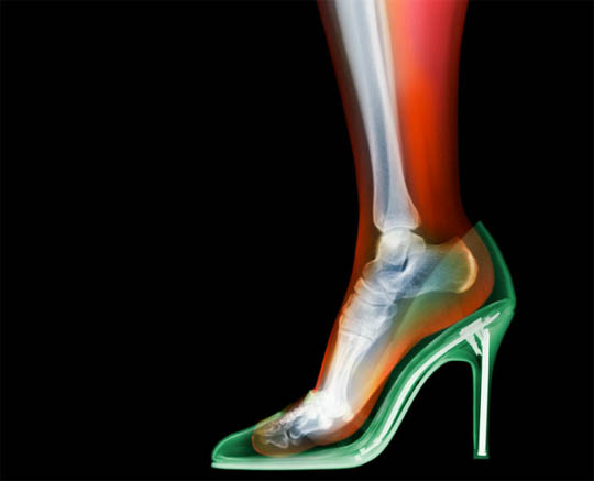X-Ray photography Nick Veasey shoes
